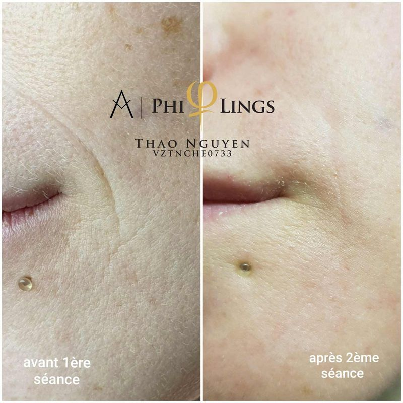 PhiLings, Eye Designer