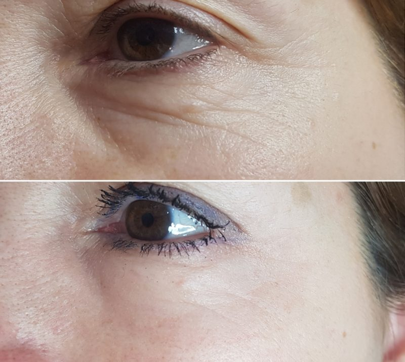 Micro Needling, MicroNeedling, skin, treatments, Collagen, Induction, Therapy, PhiBrow, PhiLings, Eye Designer