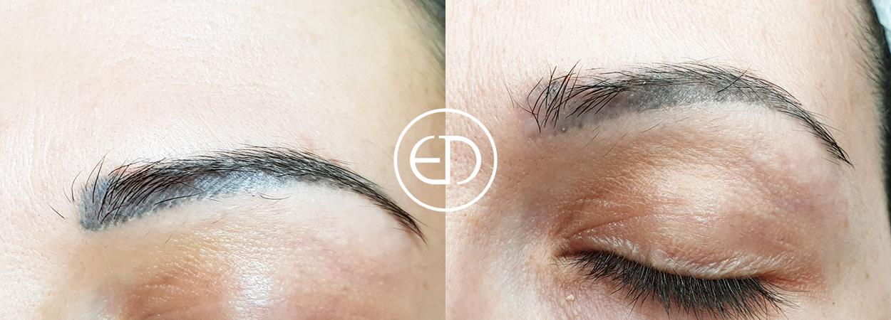 PhiRemoval, Eye Designer