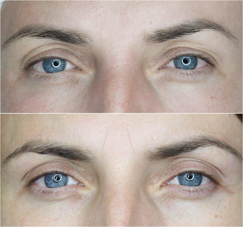 Phi-Ion, Eye Designer